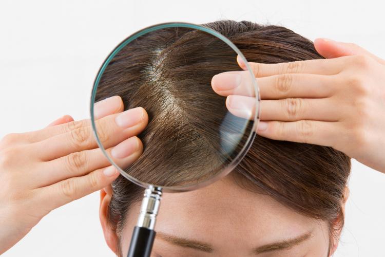 美容師に聞く「薄毛・抜け毛」が気になる女性ヘのヘアケアアドバイス