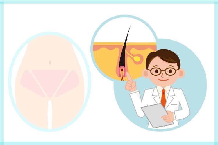 医師に聞いた!「アンダーヘアのレーザー脱毛」やっておきたいけど、痛みや安全性、値段は…!?【30代からのデリケートゾーンケアの今#4】